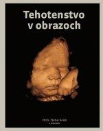 Tehotenstvo v obrazoch