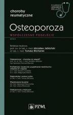 Osteoporoza Współczesne podejście W gabinecie lekarza specjalisty